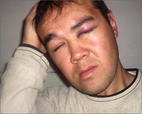 Один из пострадавших – Иззатулла Топчубаев. Фото ИА Фергана.Ру