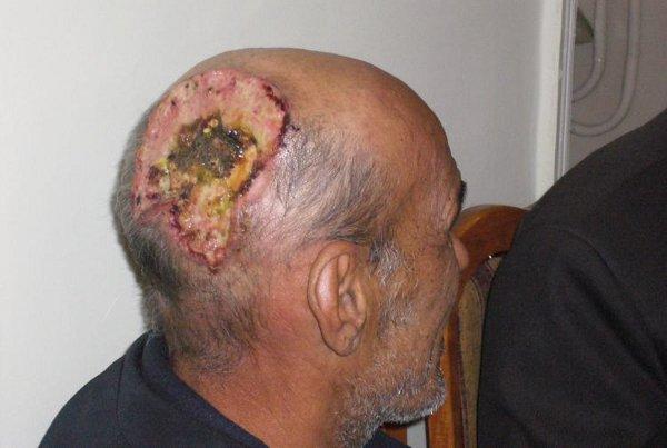 merkyriya: страшные фотографии кожных заболеваний: http://assistsmagnusg.blogspot.com/2013/02/blog-post_5562.html