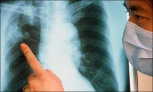 Туберкулез: старый вызов в новом контексте. Кто вылечит трудового мигранта?