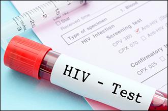Программа за программой. Что мешает Узбекистану в борьбе с ВИЧ-инфекцией